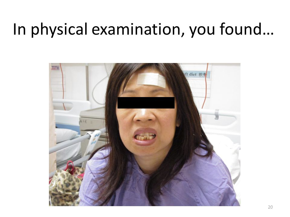 In physical examination, you found… 20