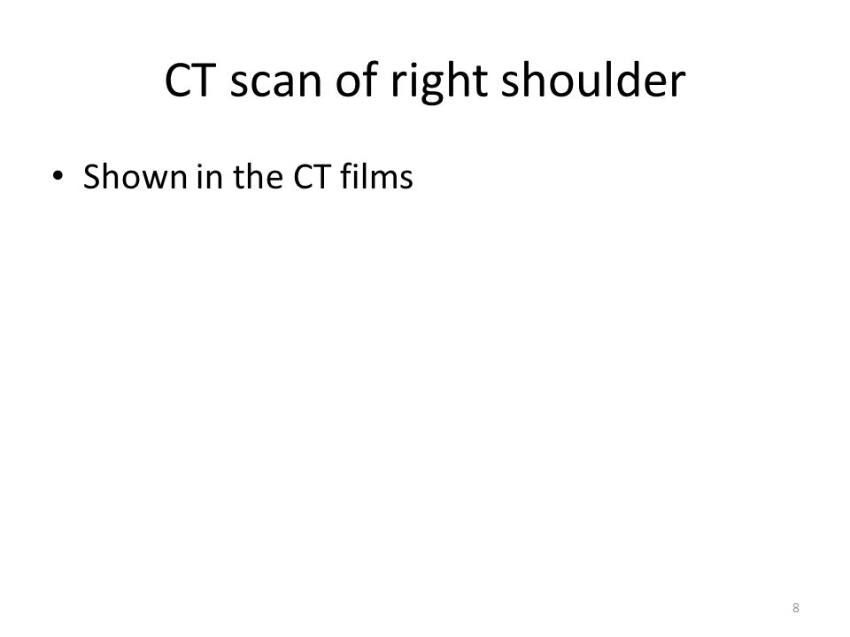 CT scan of right shoulder Shown in the CT films 8