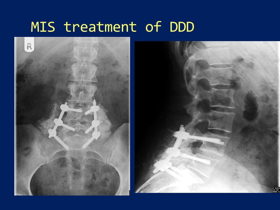 MIS treatment of DDD