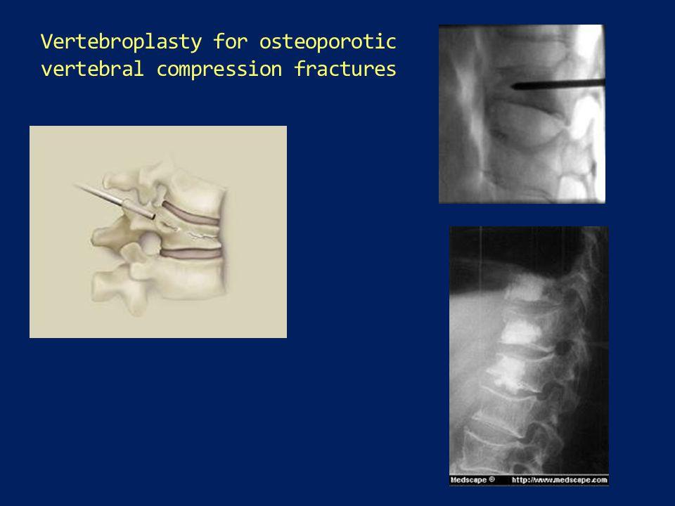 Vertebroplasty for osteoporotic vertebral compression fractures