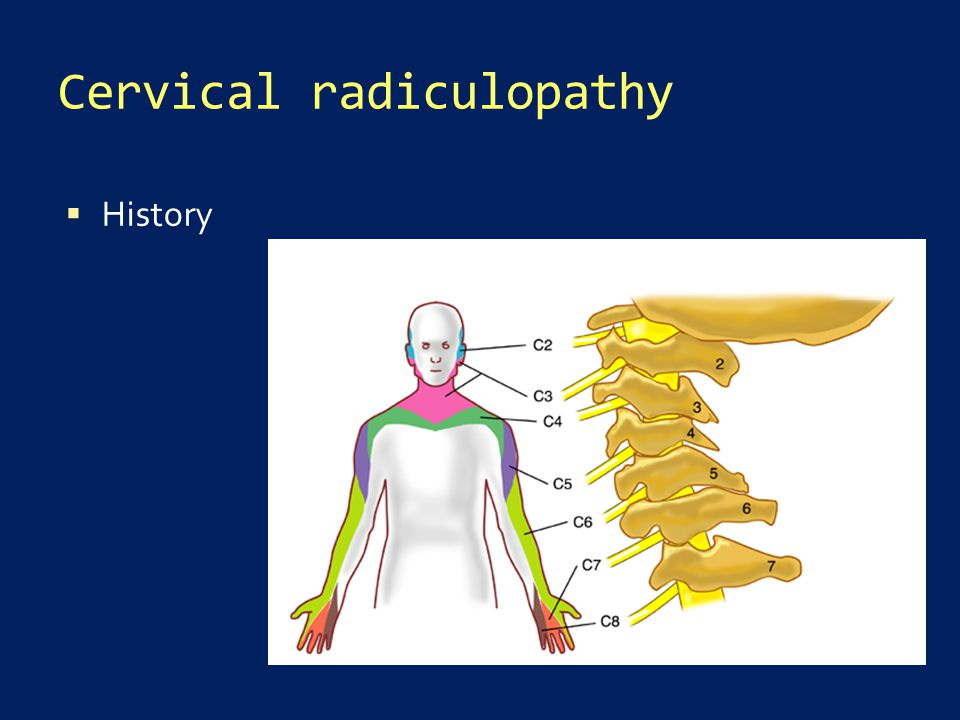 Cervical radiculopathy  History