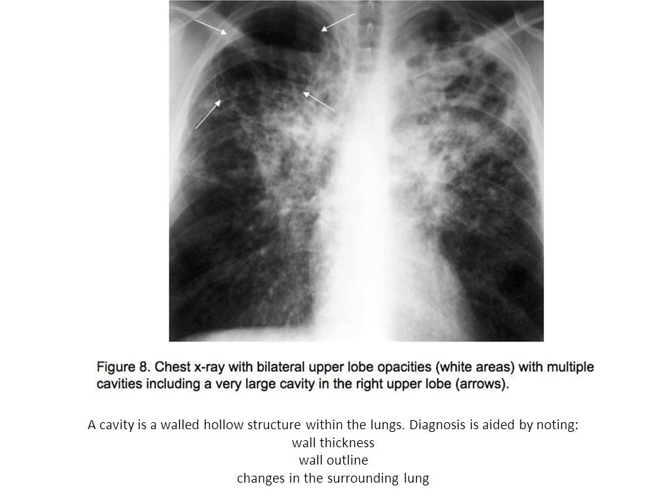 A cavity is a walled hollow structure within the lungs. Diagnosis is aided by noting: wall thickness wall outline changes in the surrounding lung