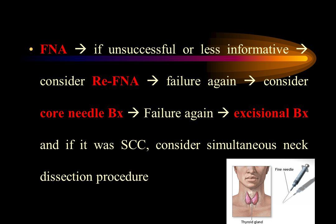FNA Re-FNA core needle Bx excisional BxFNA  if unsuccessful or less informative  consider Re-FNA  failure again  consider core needle Bx  Failure