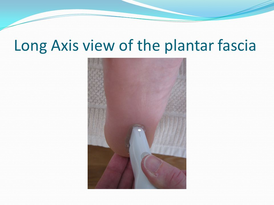 Long Axis view of the plantar fascia