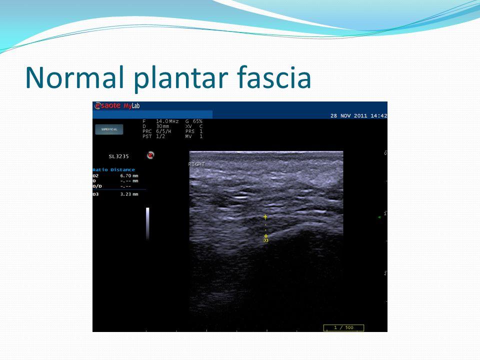 Normal plantar fascia