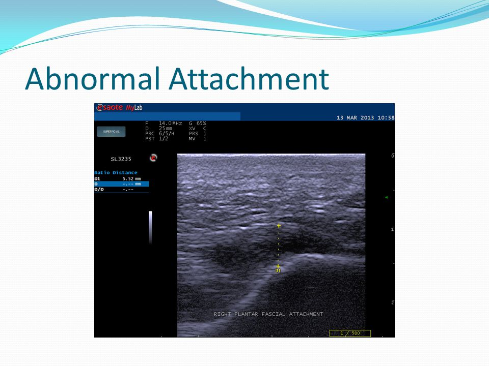 Abnormal Attachment