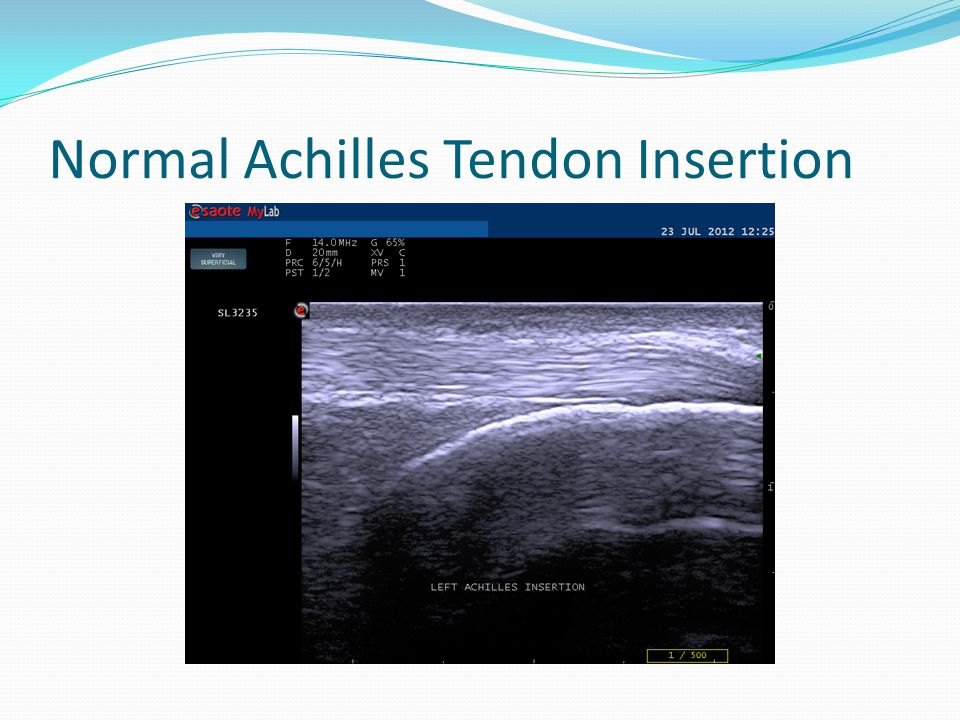Normal Achilles Tendon Insertion