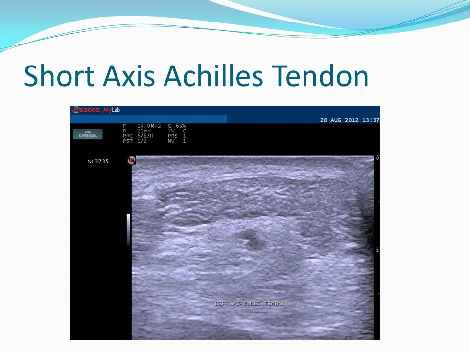 Short Axis Achilles Tendon