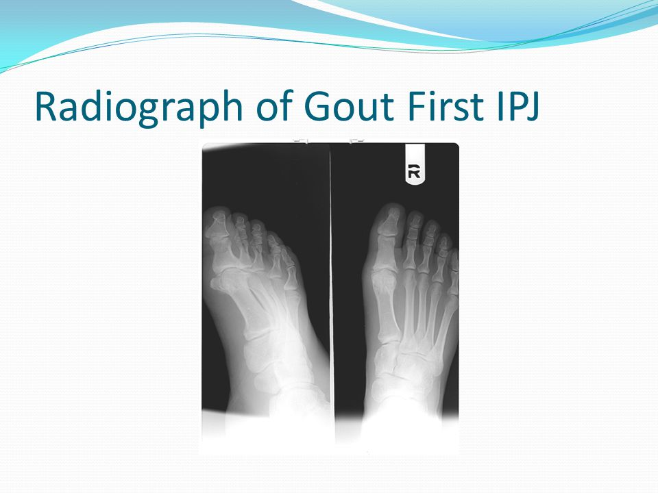 Radiograph of Gout First IPJ