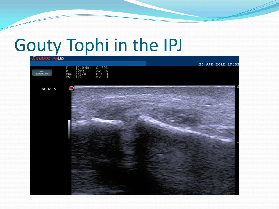 Gouty Tophi in the IPJ