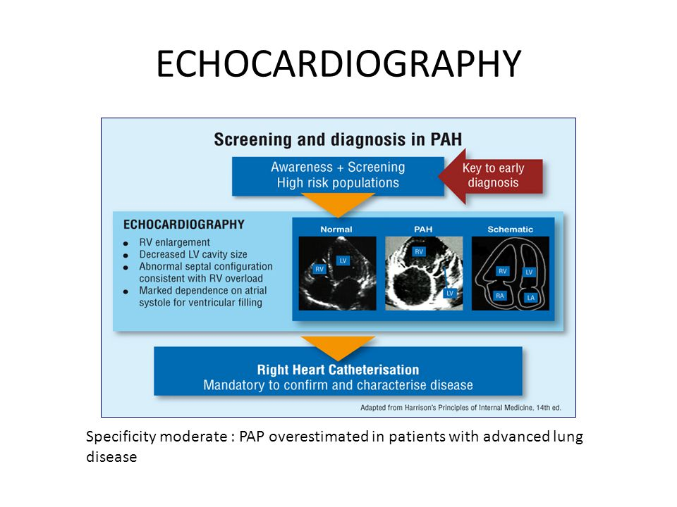 ECHOCARDIOGRAPHY Specificity moderate : PAP overestimated in patients with advanced lung disease
