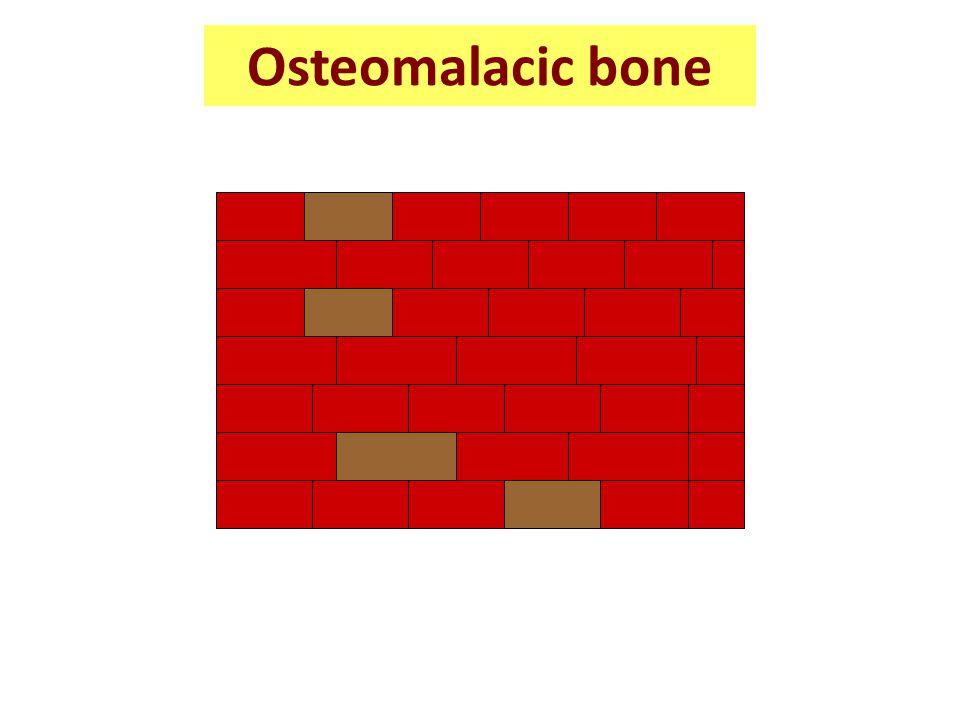 Osteomalacic bone