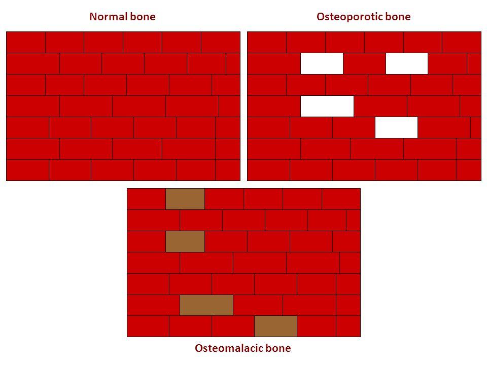Normal boneOsteoporotic bone Osteomalacic bone