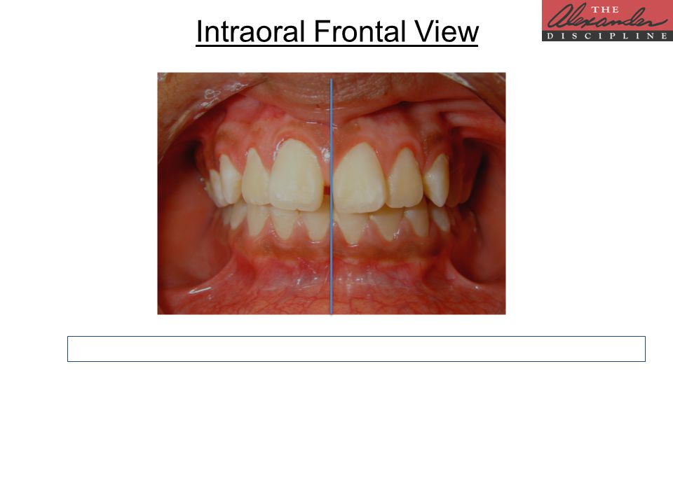 Intraoral Frontal View