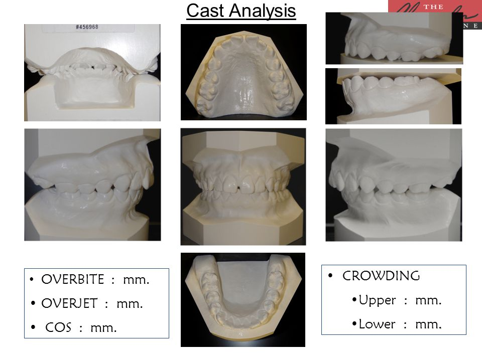 Cast Analysis CROWDING Upper : mm..Lower : mm. OVERBITE : mm. OVERJET : mm. COS : mm.