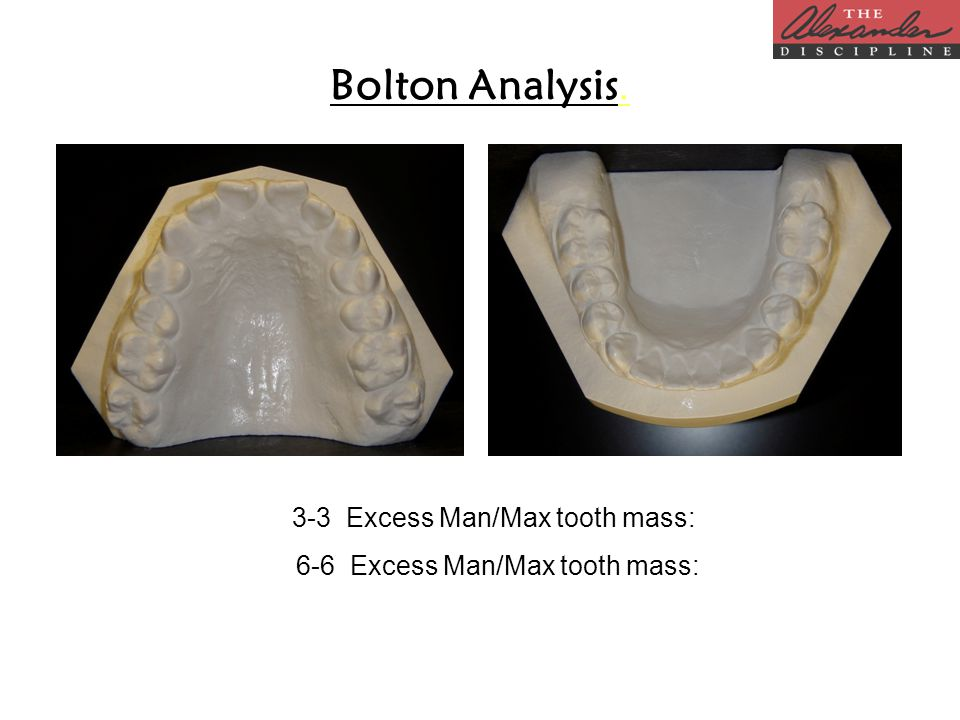 Bolton Analysis. 3-3 Excess Man/Max tooth mass: 6-6 Excess Man/Max tooth mass: 6-6 Excess Man/Max tooth mass: