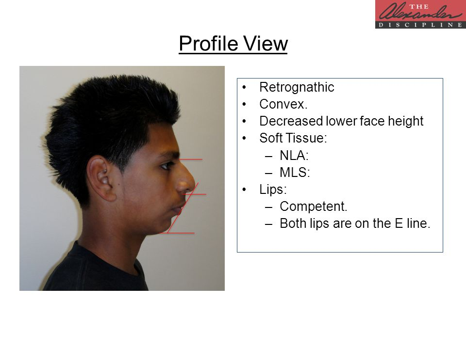 Profile View Retrognathic Convex. Decreased lower face height Soft Tissue: –NLA: –MLS: Lips: –Competent. –Both lips are on the E line.