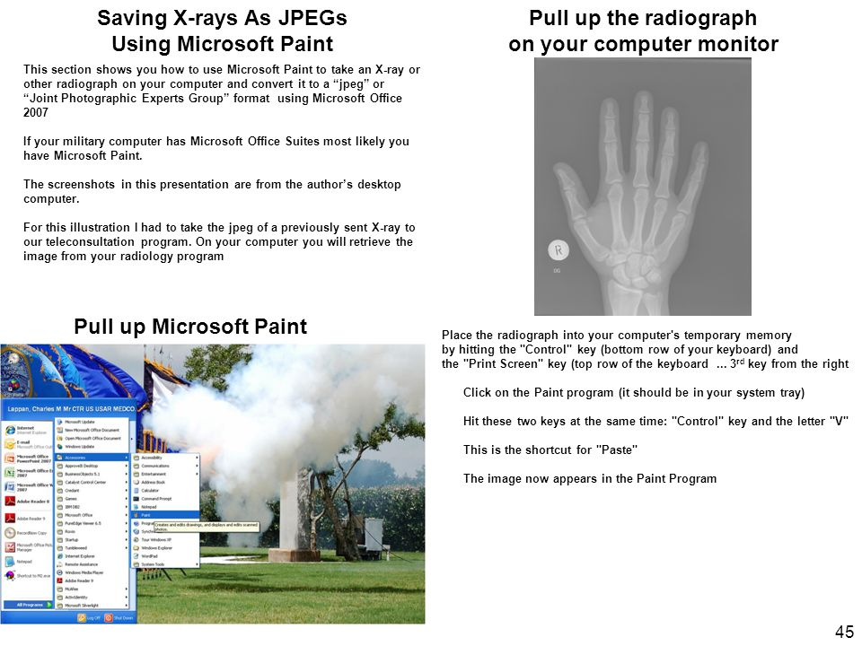 "Pull up Microsoft Paint This section shows you how to use Microsoft Paint to take an X-ray or other radiograph on your computer and convert it to a ""j"