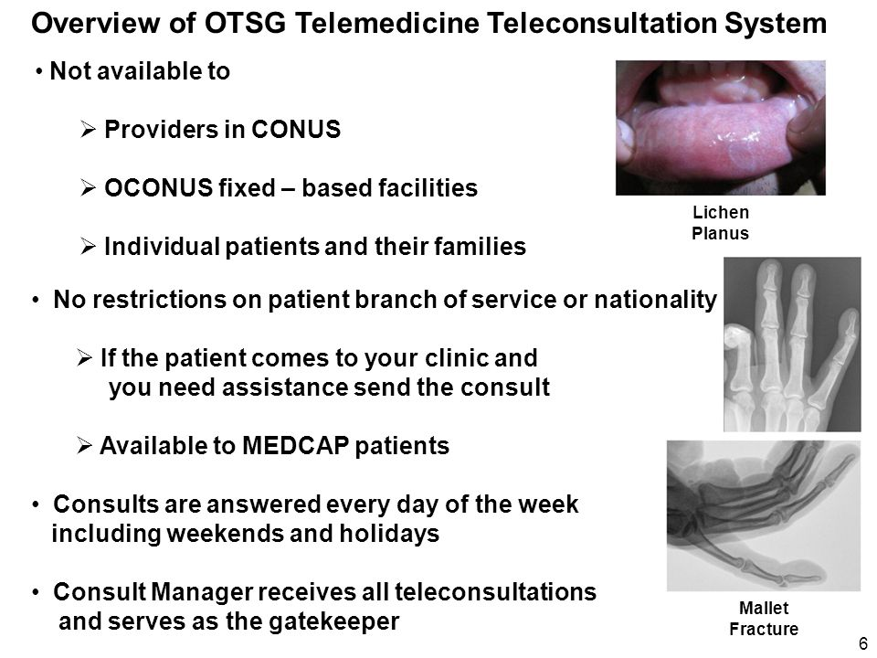 Overview of OTSG Telemedicine Teleconsultation System Not available to  Providers in CONUS  OCONUS fixed – based facilities  Individual patients an