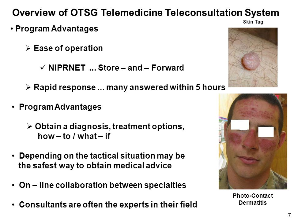 Overview of OTSG Telemedicine Teleconsultation System Program Advantages  Ease of operation NIPRNET... Store – and – Forward  Rapid response... many