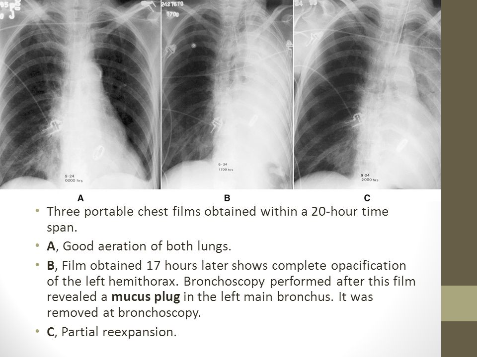 Three portable chest films obtained within a 20-hour time span.