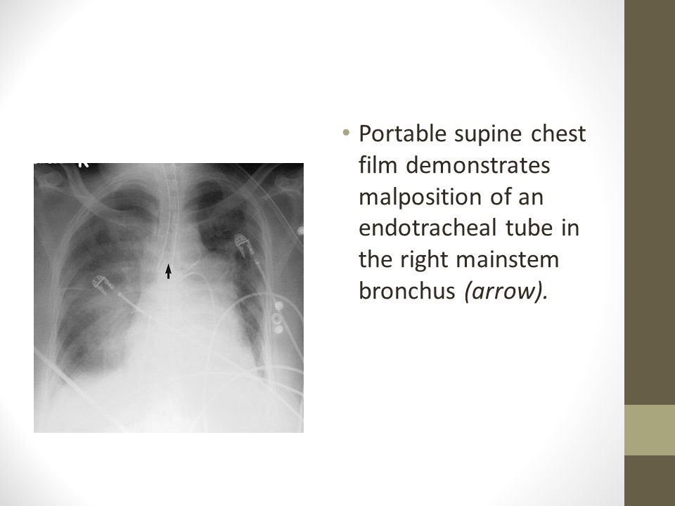 Portable supine chest film demonstrates malposition of an endotracheal tube in the right mainstem bronchus (arrow).