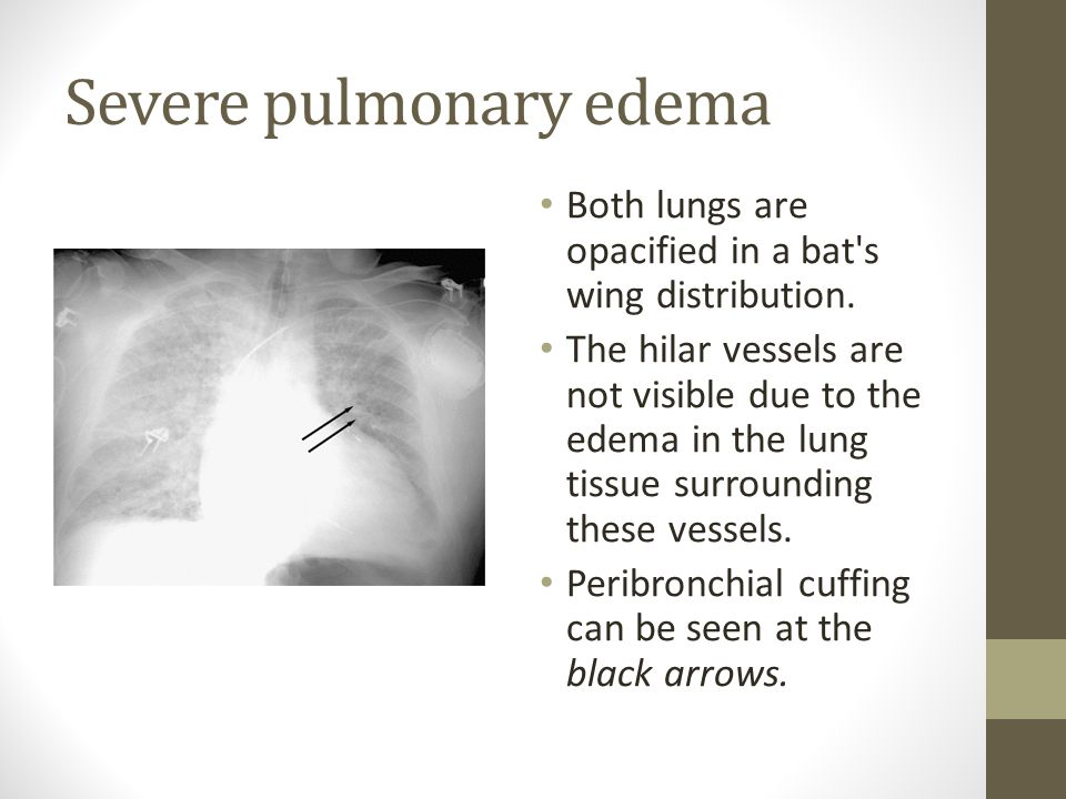Severe pulmonary edema Both lungs are opacified in a bat s wing distribution.