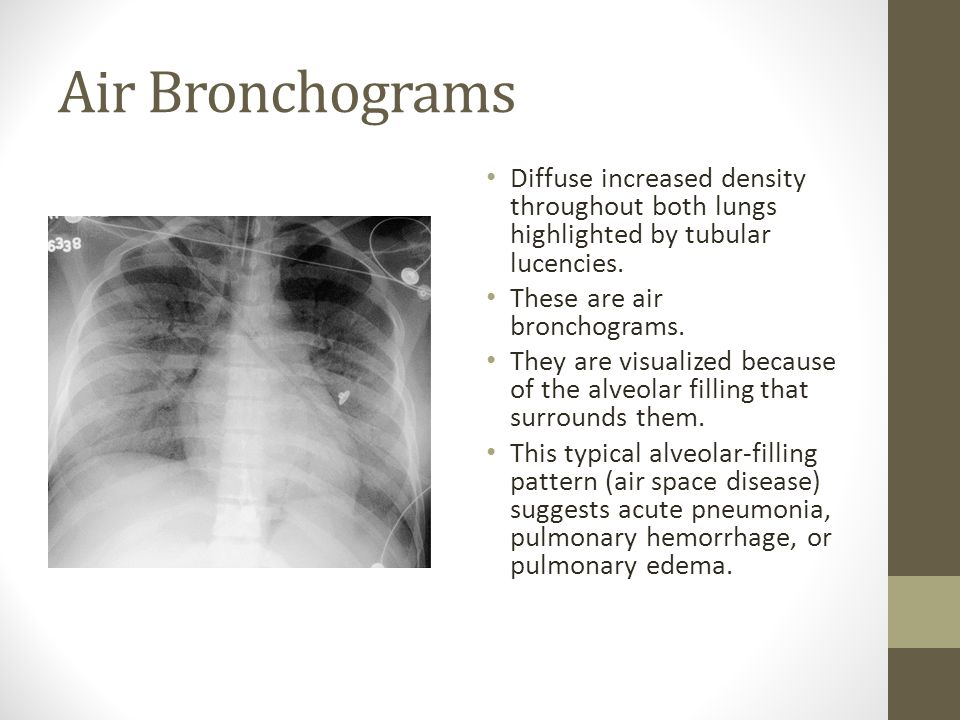 Air Bronchograms Diffuse increased density throughout both lungs highlighted by tubular lucencies.
