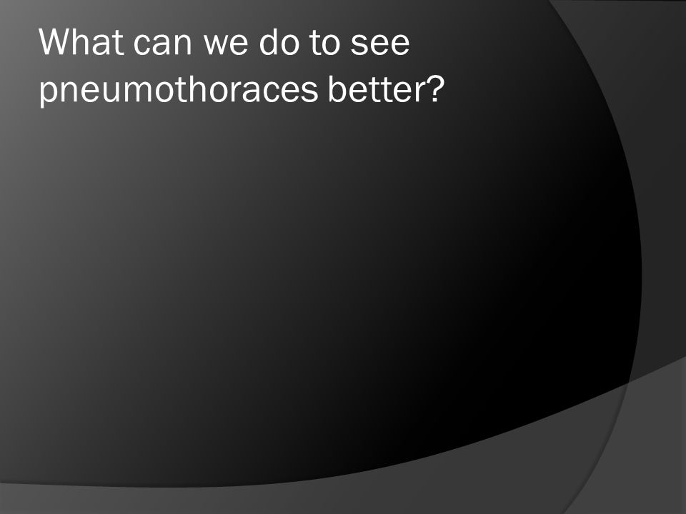 What can we do to see pneumothoraces better?