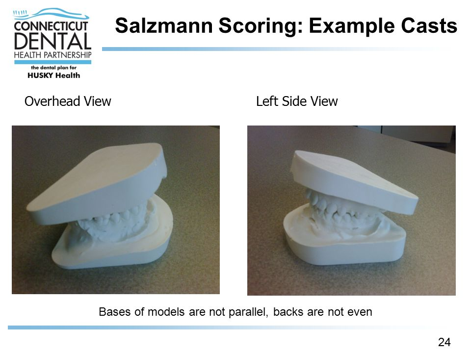 Salzmann Scoring: Example Casts 24 Overhead ViewLeft Side View Bases of models are not parallel, backs are not even