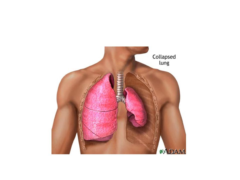 Pneumothorax Surgery/trauma-chest wall pierced without damaging lung.