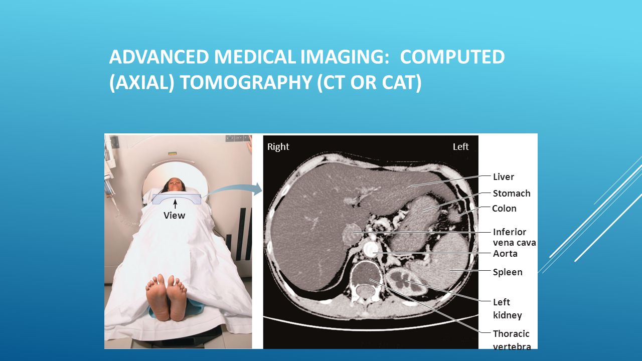 ADVANCED MEDICAL IMAGING: COMPUTED (AXIAL) TOMOGRAPHY (CT OR CAT)  Takes successive X rays around a person's circumference  Translates recorded info