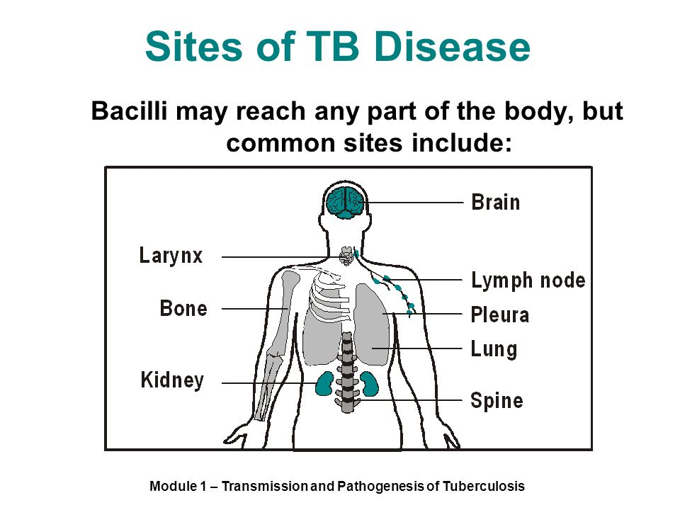 Module 1 – Transmission and Pathogenesis of Tuberculosis Sites of TB Disease Bacilli may reach any part of the body, but common sites include: