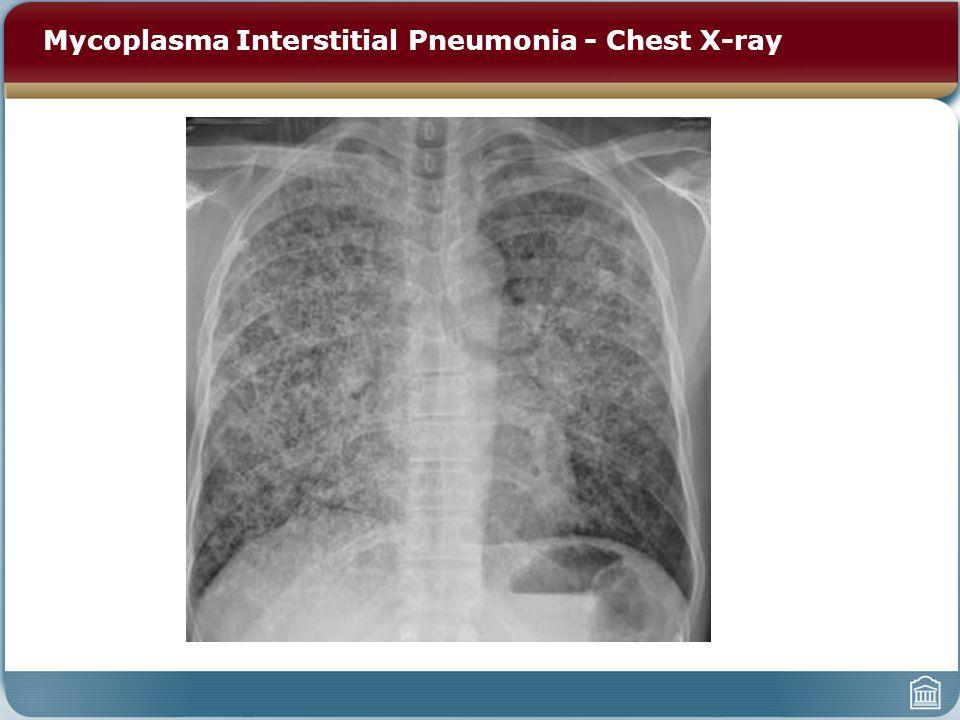 Mycoplasma Interstitial Pneumonia - Chest X-ray
