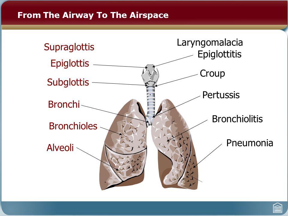 From The Airway To The Airspace Epiglottitis Croup Pertussis Bronchiolitis Pneumonia Epiglottis Subglottis Bronchi Bronchioles Alveoli Supraglottis Laryngomalacia