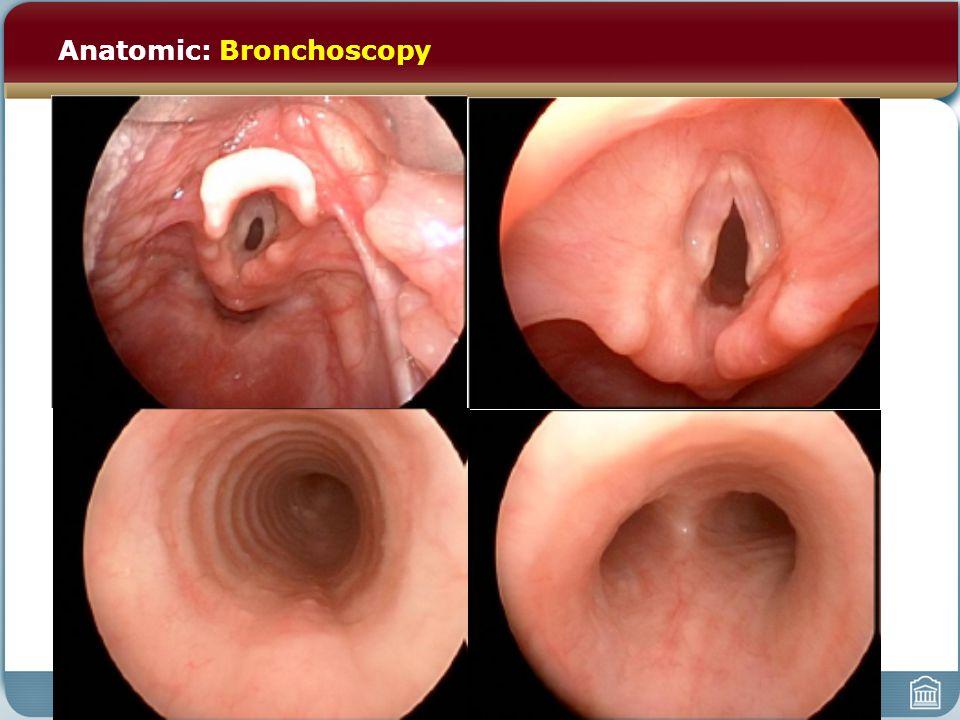 Anatomic: Bronchoscopy