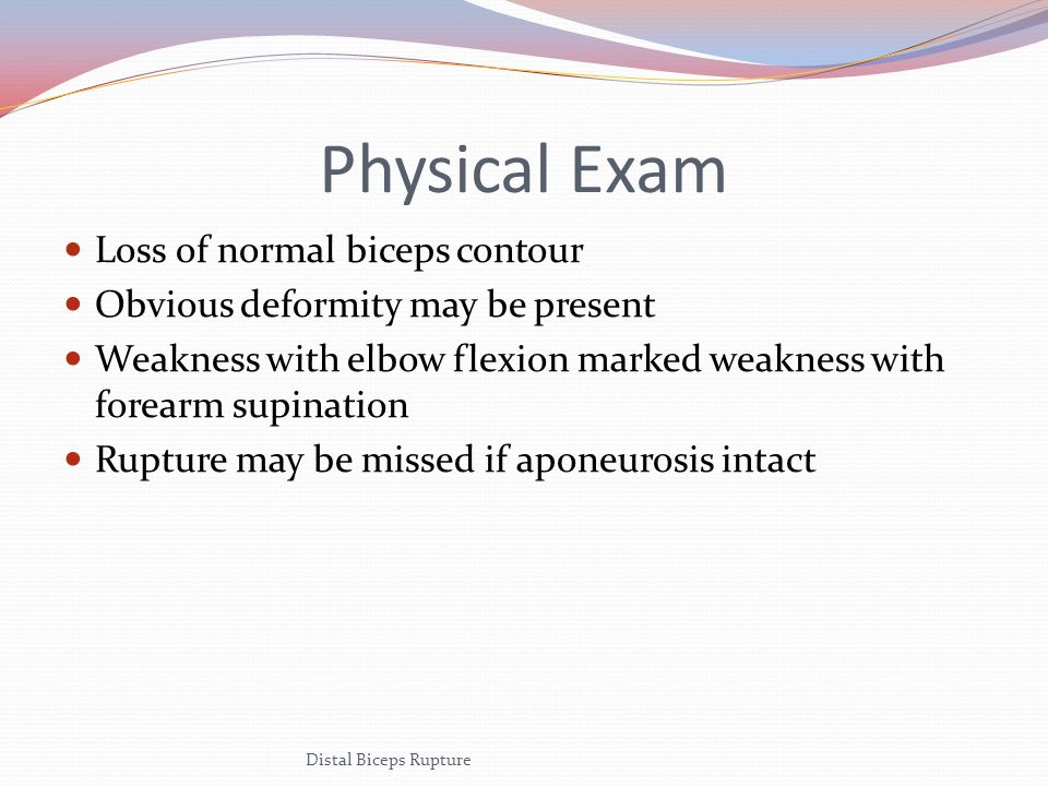 Special Tests Hook Test Insert finger under the lateral edge of biceps tendon in antecubital fossa when elbow flexed at 90° Biceps Squeeze Test Similar to Thompson test Squeeze biceps to elict forearm supination Distal Biceps Rupture