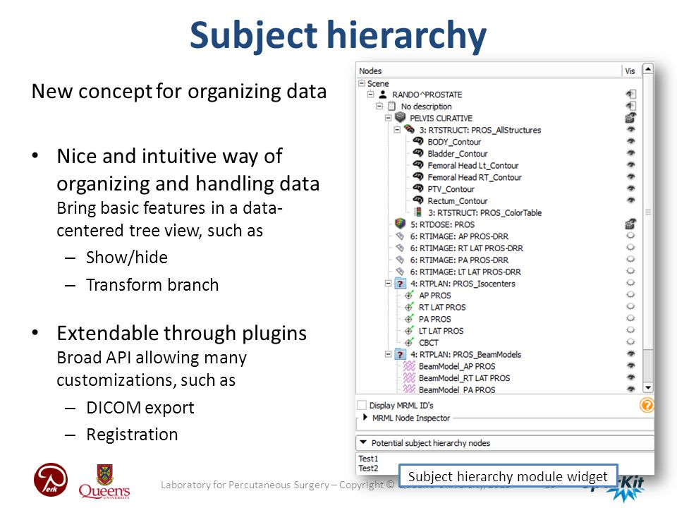 - 10 -Laboratory for Percutaneous Surgery – Copyright © Queen's University, 2013 Subject hierarchy New concept for organizing data Nice and intuitive way of organizing and handling data Bring basic features in a data- centered tree view, such as – Show/hide – Transform branch Extendable through plugins Broad API allowing many customizations, such as – DICOM export – Registration Subject hierarchy module widget