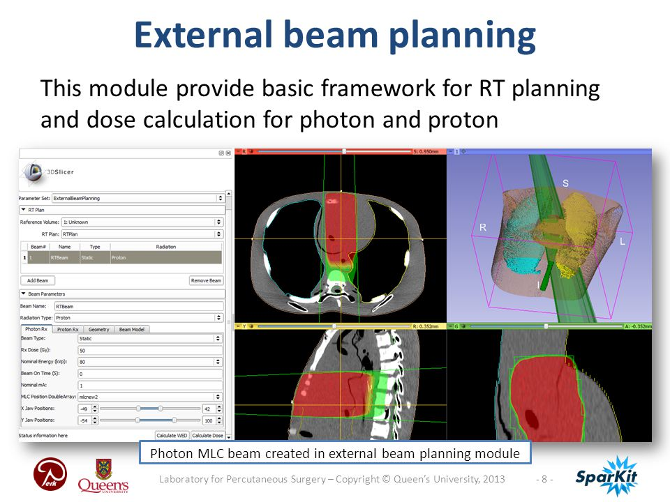- 8 -Laboratory for Percutaneous Surgery – Copyright © Queen's University, 2013 External beam planning This module provide basic framework for RT planning and dose calculation for photon and proton Photon MLC beam created in external beam planning module
