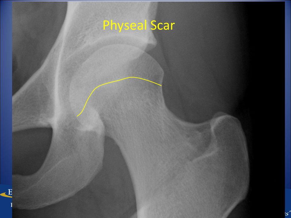 Physeal Scar