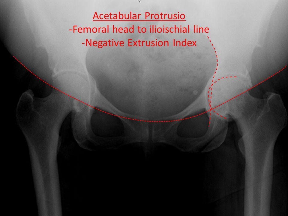 Acetabular Protrusio -Femoral head to ilioischial line -Negative Extrusion Index