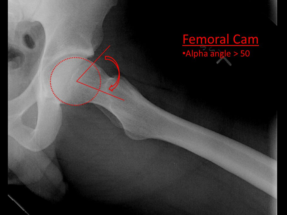 Femoral Cam Alpha angle > 50