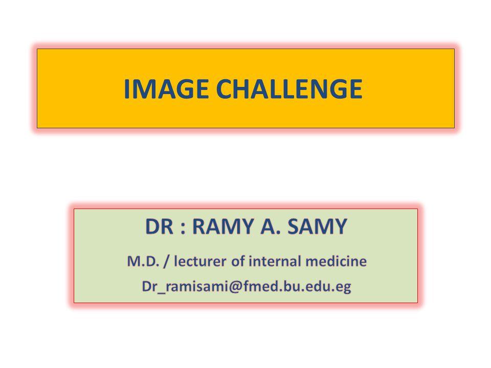 IMAGE CHALLENGE