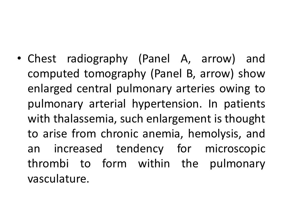 Chest radiography (Panel A, arrow) and computed tomography (Panel B, arrow) show enlarged central pulmonary arteries owing to pulmonary arterial hypertension.