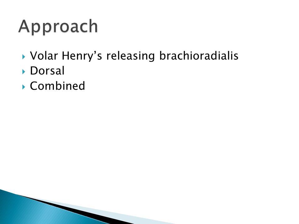  Volar Henry's releasing brachioradialis  Dorsal  Combined