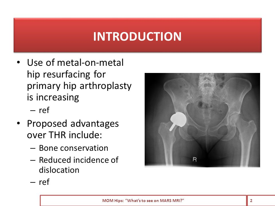 Use of metal-on-metal hip resurfacing for primary hip arthroplasty is increasing – ref Proposed advantages over THR include: – Bone conservation – Reduced incidence of dislocation – ref MOM Hips: What's to see on MARS MRI 2 INTRODUCTION