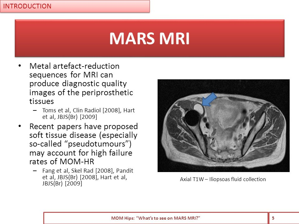 Metal artefact-reduction sequences for MRI can produce diagnostic quality images of the periprosthetic tissues – Toms et al, Clin Radiol [2008], Hart et al, JBJS(Br) [2009] Recent papers have proposed soft tissue disease (especially so-called pseudotumours ) may account for high failure rates of MOM-HR – Fang et al, Skel Rad [2008], Pandit et al, JBJS(Br) [2008], Hart et al, JBJS(Br) [2009] MOM Hips: What's to see on MARS MRI 5 MARS MRI INTRODUCTION Axial T1W – Iliopsoas fluid collection