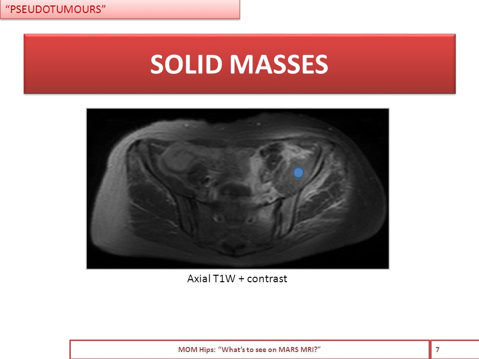 Intermediate signal intensity on T1W and T2W No fluid characteristics Poorly demarcated border Local regional soft tissue invasion MOM Hips: What's to see on MARS MRI? 8 IMAGING FEATURES PSEUDOTUMOURS – SOLID MASSES Axial T1W