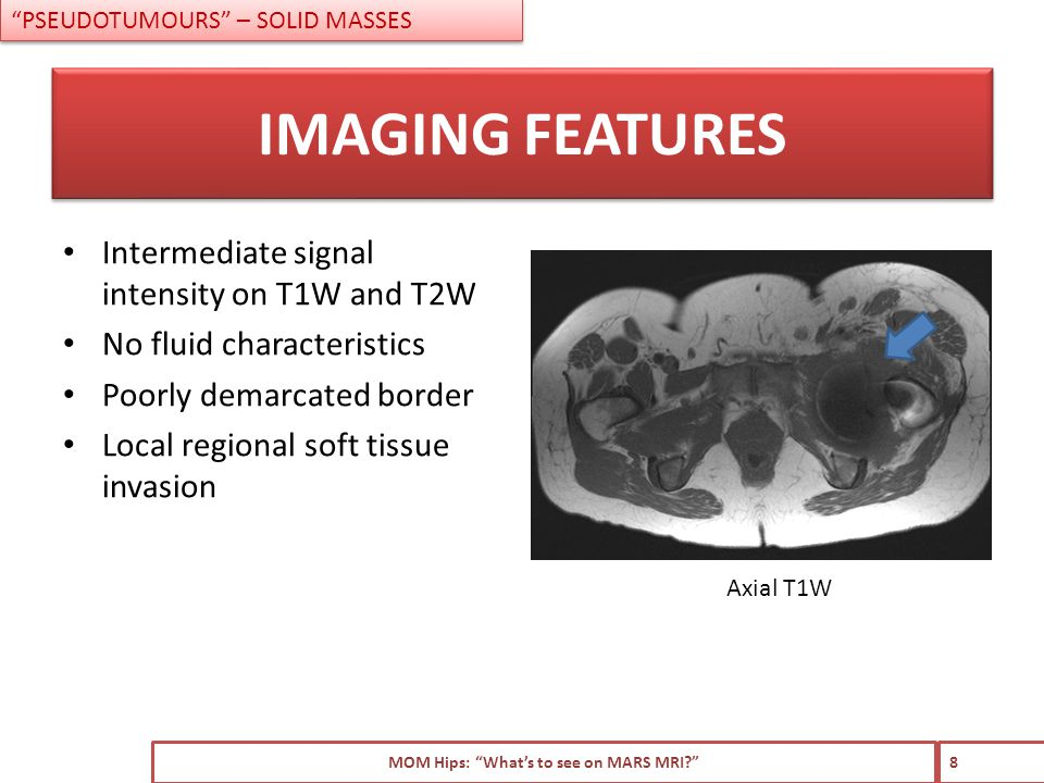 Intermediate signal intensity on T1W and T2W No fluid characteristics Poorly demarcated border Local regional soft tissue invasion MOM Hips: What's to see on MARS MRI 8 IMAGING FEATURES PSEUDOTUMOURS – SOLID MASSES Axial T1W