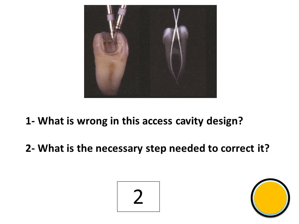 12 Shift 1- The name of both objects inside root canal 2- The function of object labeled with an arrow